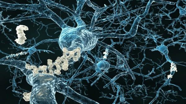 Alzheimertestesangue